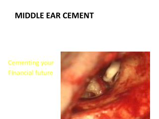 Middle Ear Cement