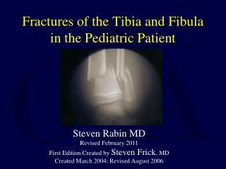 Fractures of the Tibia and Fibula in the Pediatric Patient