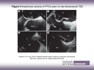 Figure 3  Anatomical variants of PFOs seen on two-dimensional TEE