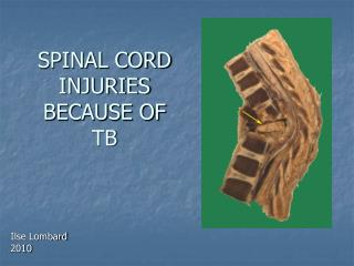 SPINAL CORD INJURIES BECAUSE OF TB
