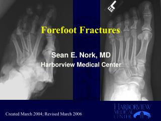 Forefoot Fractures