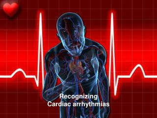 Recognizing Cardiac arrhythmias
