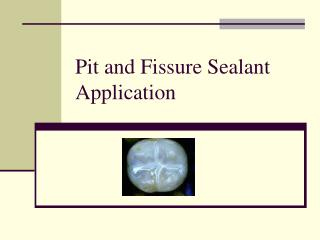 Pit and Fissure Sealant  Application