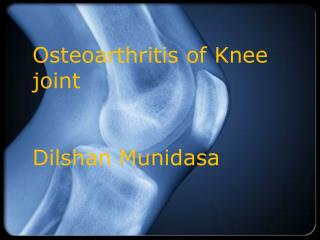 Osteoarthritis of Knee joint Dilshan Munidasa