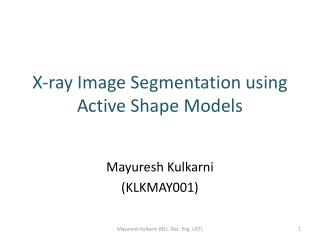 X-ray Image Segmentation using Active Shape Models