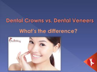 Dental Crowns VS. Dental Veneers | Affordable Dental Implant