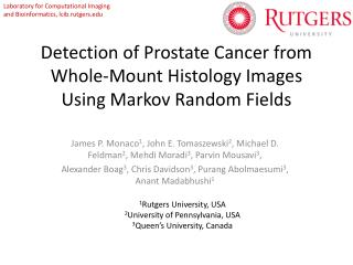 Detection of Prostate Cancer from Whole-Mount Histology Images Using Markov Random Fields