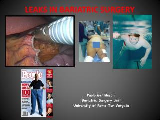 LEAKS IN BARIATRIC SURGERY