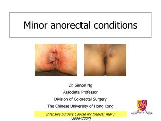 Minor anorectal conditions