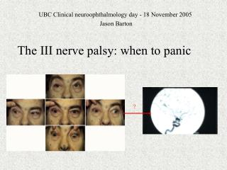 The III nerve palsy: when to panic