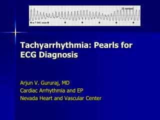 Tachyarrhythmia: Pearls for ECG Diagnosis