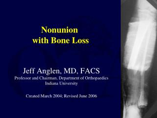 Nonunion  with Bone Loss