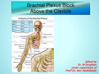 Brachial Plexus Block Above the Clavicle