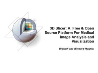 3D Slicer: A  Free & Open Source Platform For Medical Image Analysis and Visualization