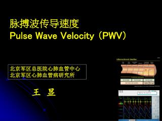 脉搏波传导速度 Pulse Wave Velocity  (PWV)