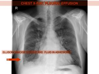 CHEST X-RAY: PLEURAL EFFUSION