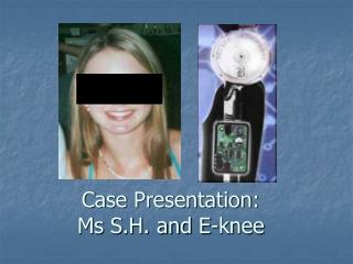 Case Presentation: Ms S.H. and E-knee