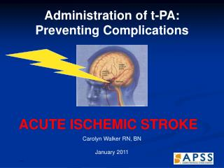 Administration of t-PA:  Preventing Complications