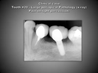 Clinical case  Tooth #20 , Large periapical Pathology (x-ray) Pain on light percussion.