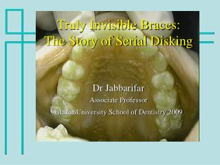 Truly Invisible Braces:  The Story of Serial Disking