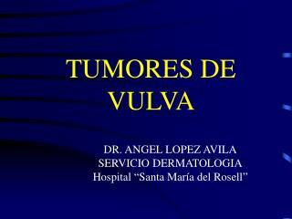 TUMORES DE VULVA