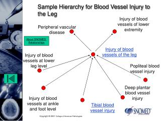 Sample Hierarchy for Blood Vessel Injury to the Leg