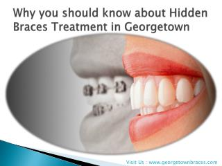 Why you should know about Hidden Braces Treatment in Georget
