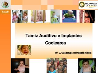Tamiz Auditivo e Implantes Cocleares Dr. J. Guadalupe Hernández Alcalá