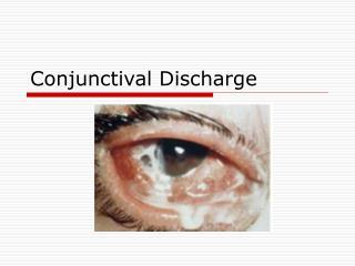 Conjunctival Discharge
