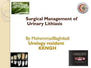 Surgical Management of  Urinary  Lithiasis By  MohammadBaghdadi Urology resident           KKNGH