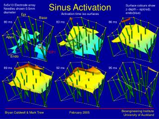 Sinus Activation