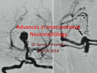 Advances in Interventional  Neuroradiology