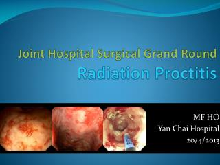 Joint Hospital Surgical Grand Round  Radiation Proctitis