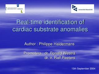 Real-time identification of cardiac substrate anomalies