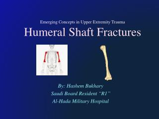 Emerging Concepts in Upper Extremity Trauma Humeral Shaft Fractures