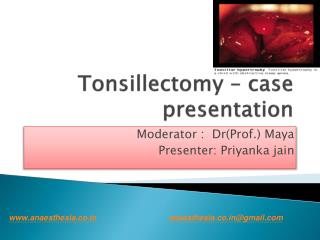 Tonsillectomy – case presentation