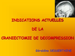INDICATIONS ACTUELLES DE LA  CRANIECTOMIE DE DECOMPRESSION