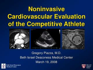 Noninvasive Cardiovascular Evaluation of the Competitive Athlete