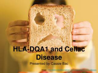 HLA-DQA1 and Celiac Disease