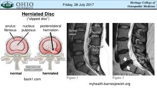 Sciatica vs. Herniated Disc