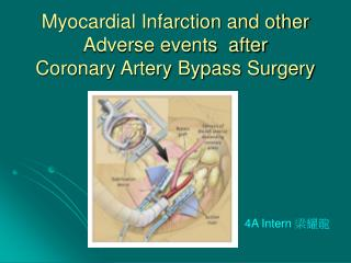 Myocardial Infarction and other Adverse events  after  Coronary Artery Bypass Surgery