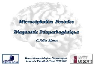 Microcéphalies  Foetales Diagnostic Etiopathogénique