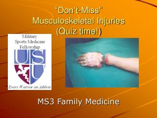 """Don't-Miss""  Musculoskeletal Injuries (Quiz time!)"