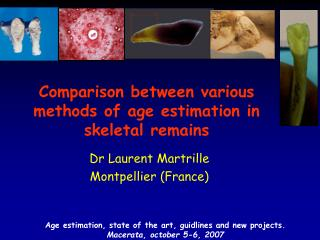 Comparison between various methods of age estimation in skeletal remains