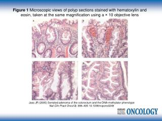 Jass JR (2005) Serrated adenoma of the colorectum and the DNA-methylator phenotype