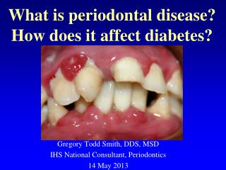 What is periodontal disease? How does it affect diabetes?