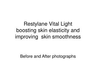 Restylane Vital Light  boosting skin elasticity and improving  skin smoothness