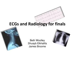 ECGs and Radiology for finals Beth Woolley Shuayb Elkhalifa James Broome