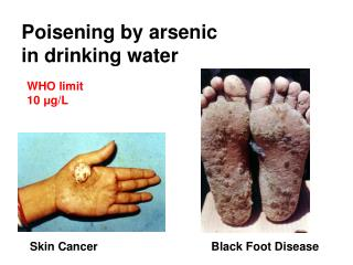 Poisening by arsenic  in drinking water