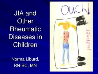 JIA and Other Rheumatic Diseases in Children